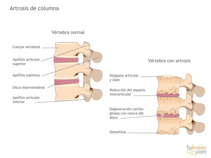 La Artrosis en la Columna Vertebral | Elimine Su Dolor de Espalda