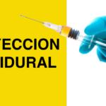inyeccion epidural