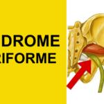 como aliviar ciatica sindrome piriforme